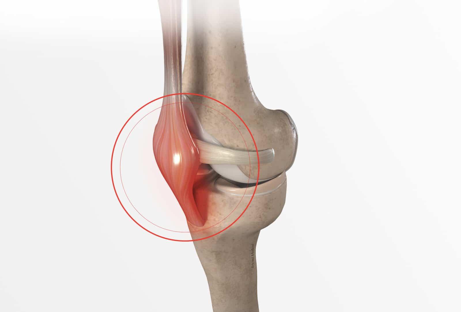 Tendinite tendon rotulien: Symptômes et traitement à Paris - Dr Paillard