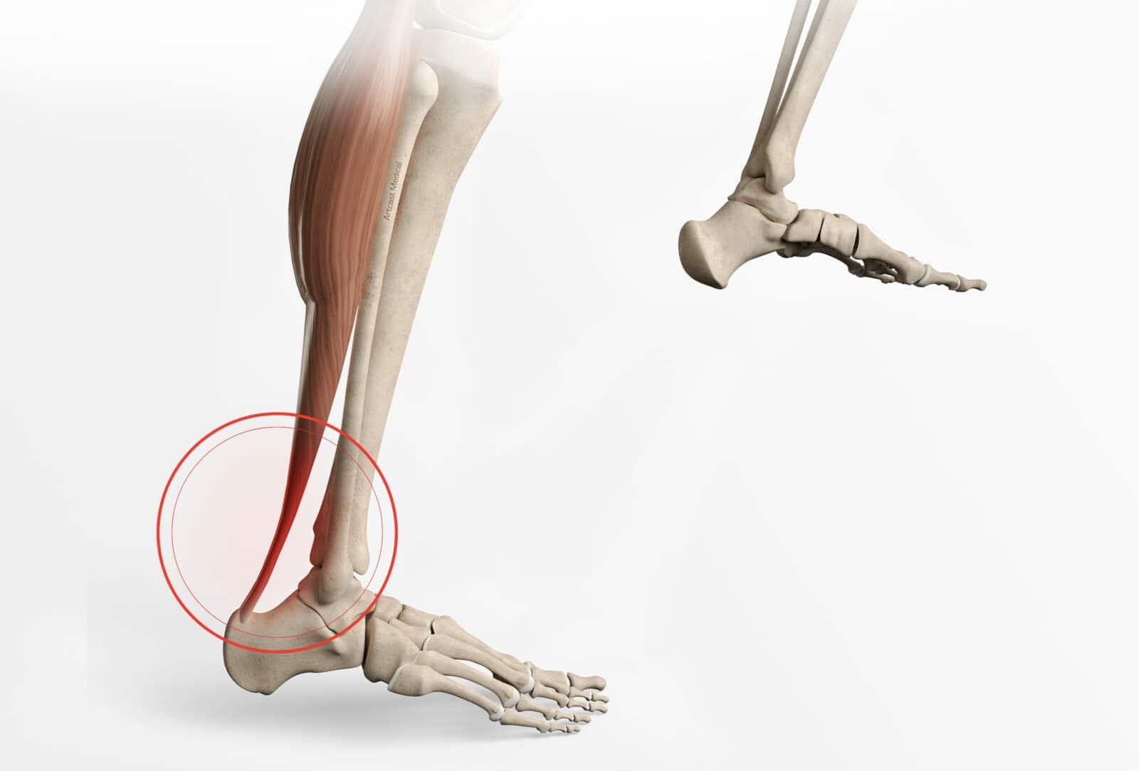 Tendinite du tendon d'Achille: Symptômes et traitement à Paris - Dr Paillard